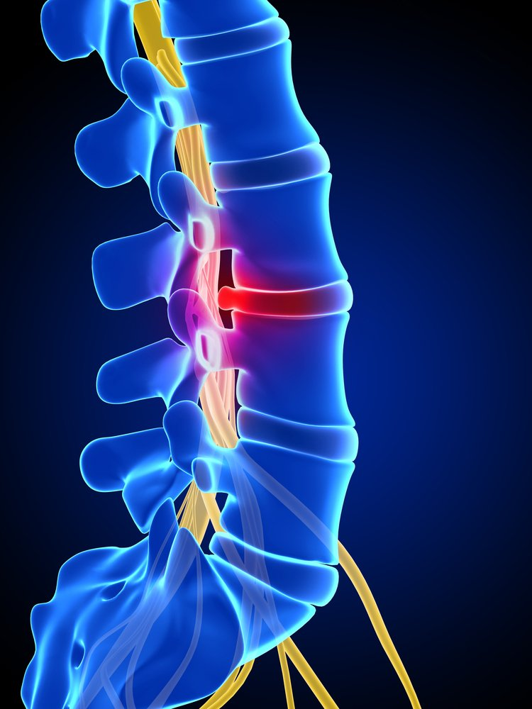 Herniated Disc Treatment & Causes – Las Vegas NV