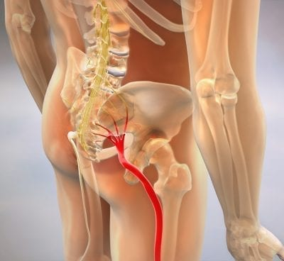 Sciatica Doctor in Tucson First Chiropractic