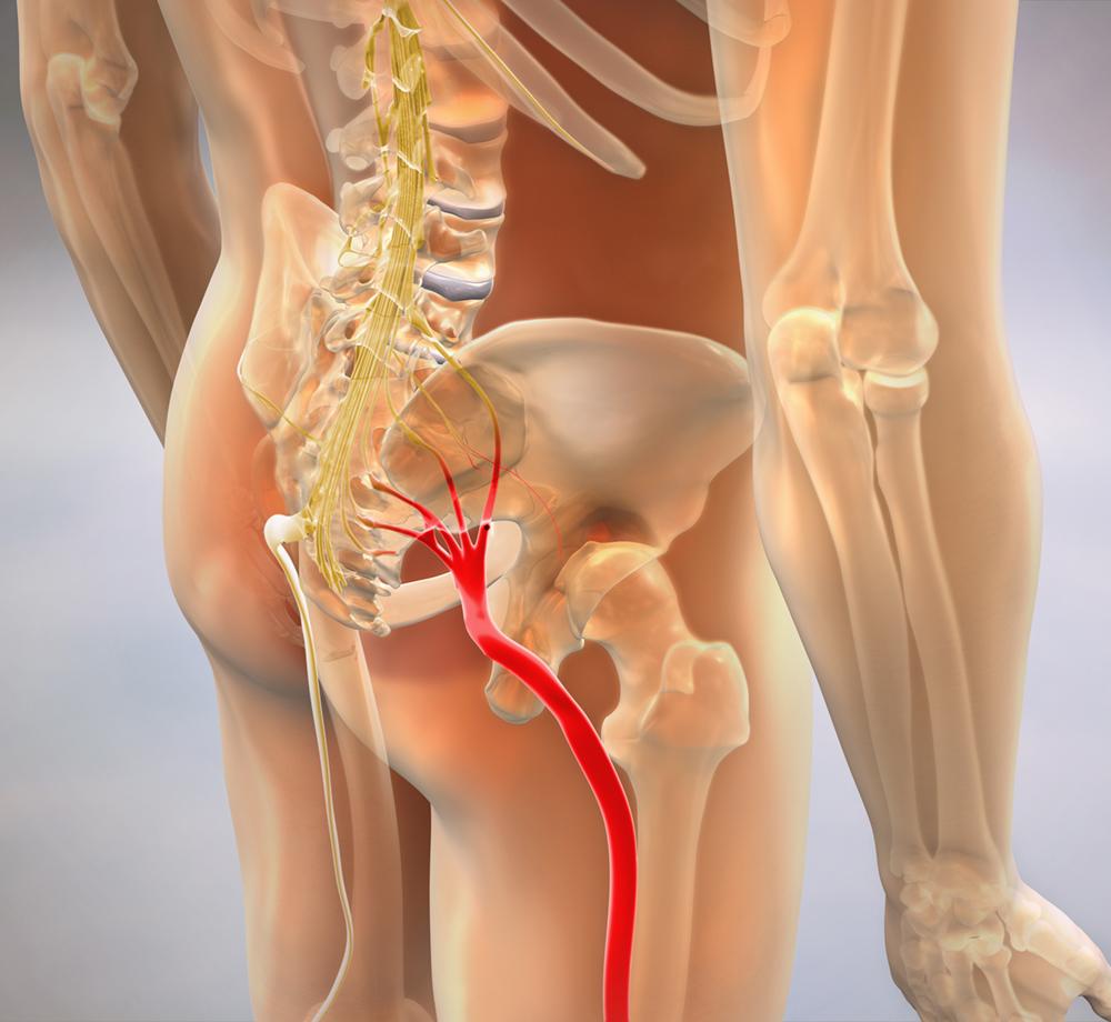 Sciatic Nerve Pain & Sciatica Treatment