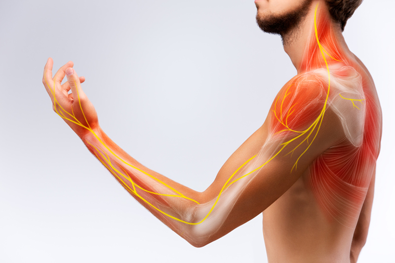 Signs and Symptoms of Pinched Nerve