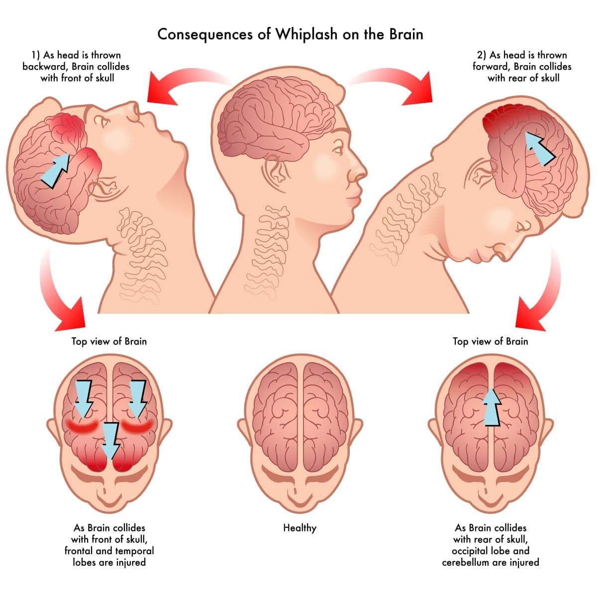 Whiplash On The Brain