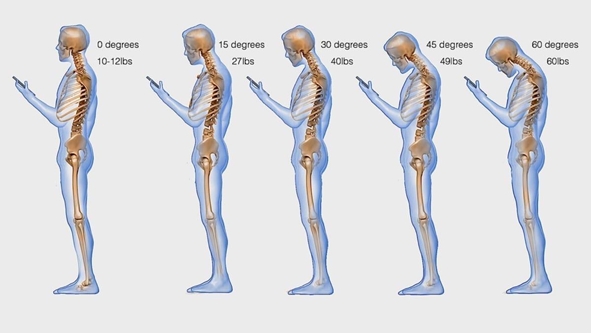 Text Neck Syndrome